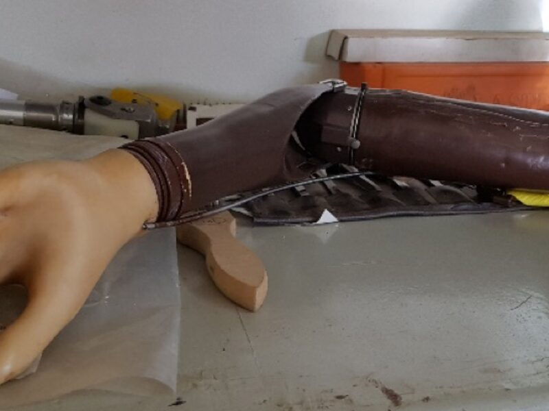 Upper limb body powered prosthesis consisting of a hand and an arm that has two sections joined by a mechanical elbow. The arm section is made of a dark brow plastic material while the hand is covered by a sleeve that has a much lighter color, this contrast of colors is one of the reasons prosthetics users reject their prostheses.