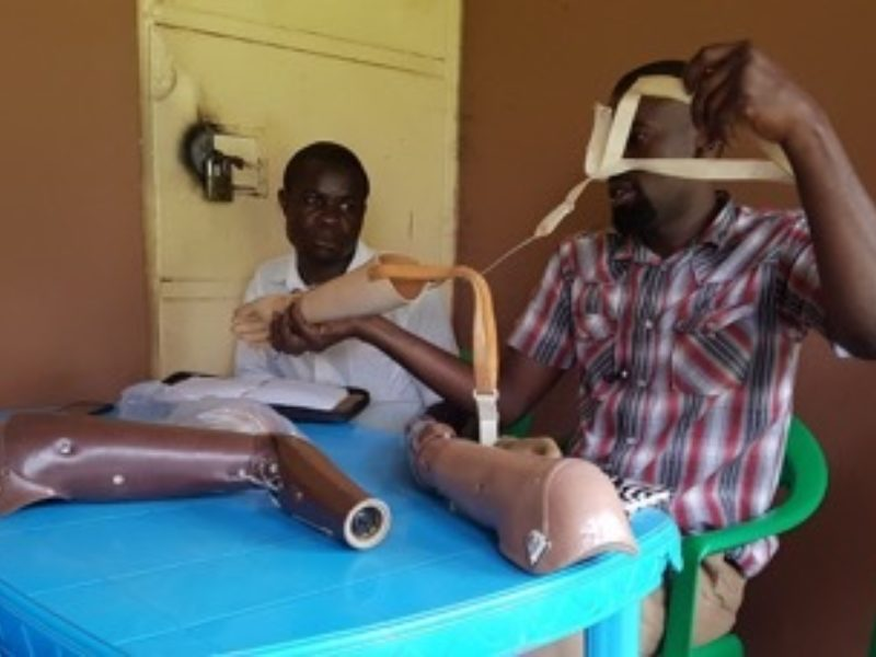 Two people assembling Prosthetics at a blue table.